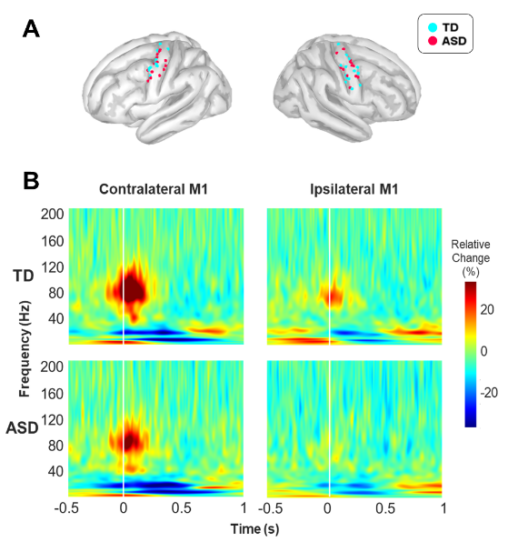 Paper by Kyung-min An accepted in Neuroimage Clinical